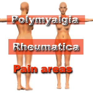 polymyalgia treatment without steroids