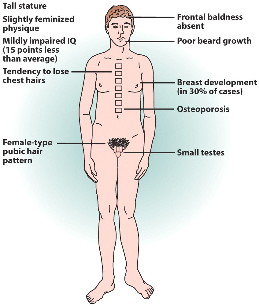 Turner Syndrome Definition, Symptoms & Life-Expectancy Pictures of males with klinefelter syndrome