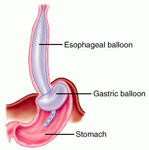 patient care for esophagogastric balloon tamponade Learn how uptodate can help you bakri tamponade balloon catheter – the bakri always seek the advice of your own physician or other qualified health care.