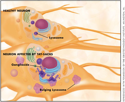 Charming answer Tay sachs disease in adult topic
