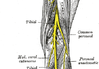 how to fix peroneal nerve