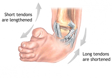 How to fix a clubfoot in a child: 8 super methods 15