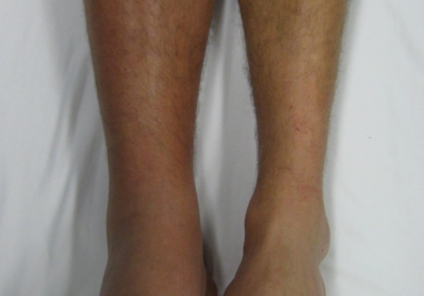 Deep vein thrombosis  DVT Venous Thrombosis Treatment