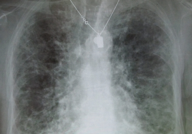 Diffuse interstitial lung disease