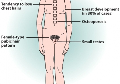 the symptoms and effects of klinefelter syndrome a genetic disorder affecting males Learn about types of genetic diseases, causes, facts, symptoms and treatments the most common symptom of klinefelter syndrome is infertility prader-willi syndrome (pws) is a complex genetic disorder that affects growth, metabolism, appetite, cognitive function, behavioral problems.