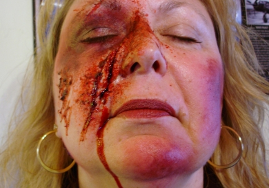 Lacerations Causes Symptoms Treatment Lacerations