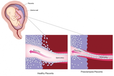 Preeclampsia. Causes, symptoms, treatment PreeclampsiaPreeclampsia Swelling Vs Normal Swelling