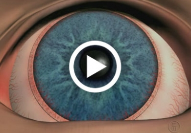 Refractive Corneal Surgery Discharge Causes Symptoms