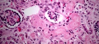 acute renal failure illnesses and diseases Respiratory considerations in the patient with  acute renal failure,  three of the most familiar diseases with both pulmo-nary and renal manifestations are.